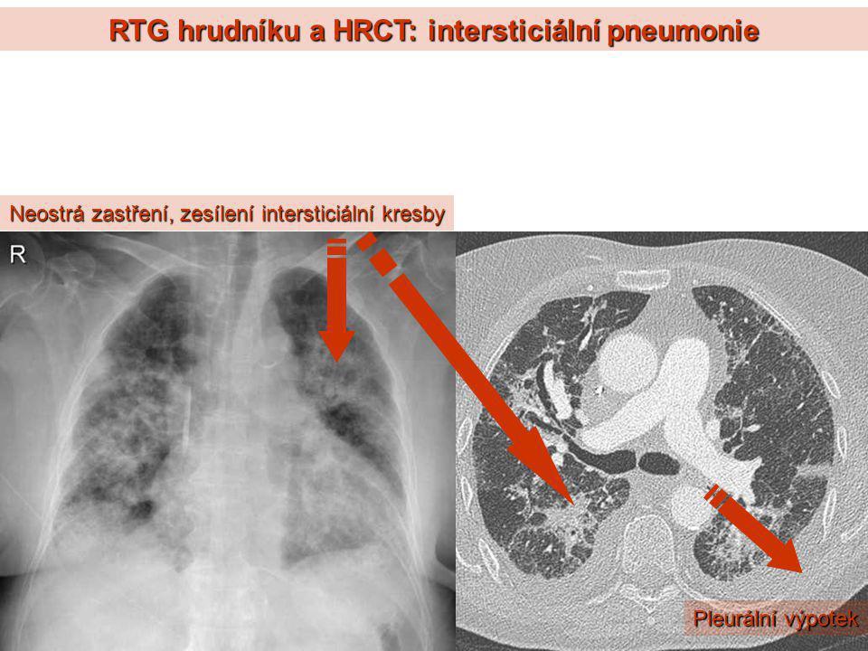 RTG hrudníku a HRCT: intersticiální pneumonie
