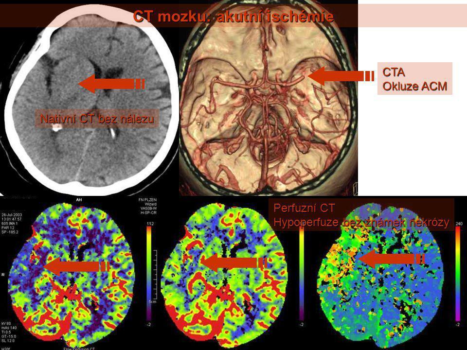 CT mozku: akutní ischémie