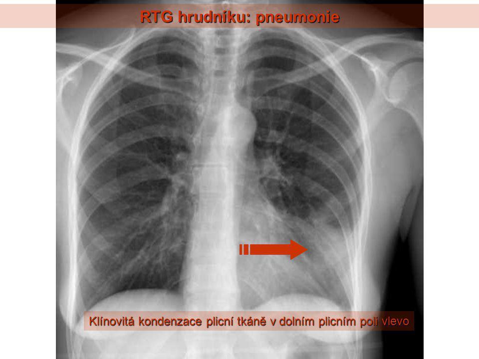 RTG hrudníku: pneumonie