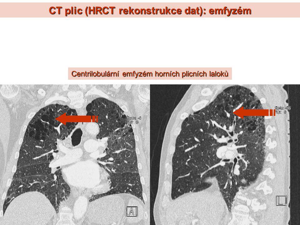 CT plic (HRCT rekonstrukce dat): emfyzém