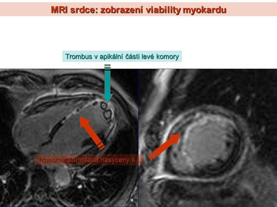 MRI srdce: zobrazení viability myokardu