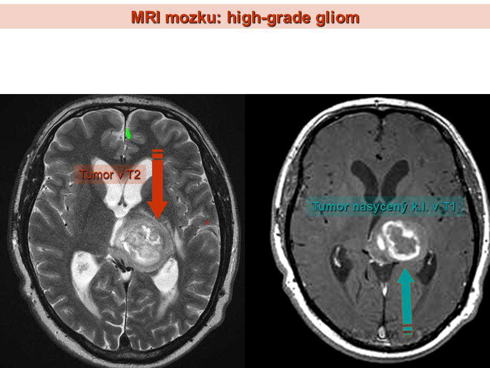 MRI mozku: high-grade gliom