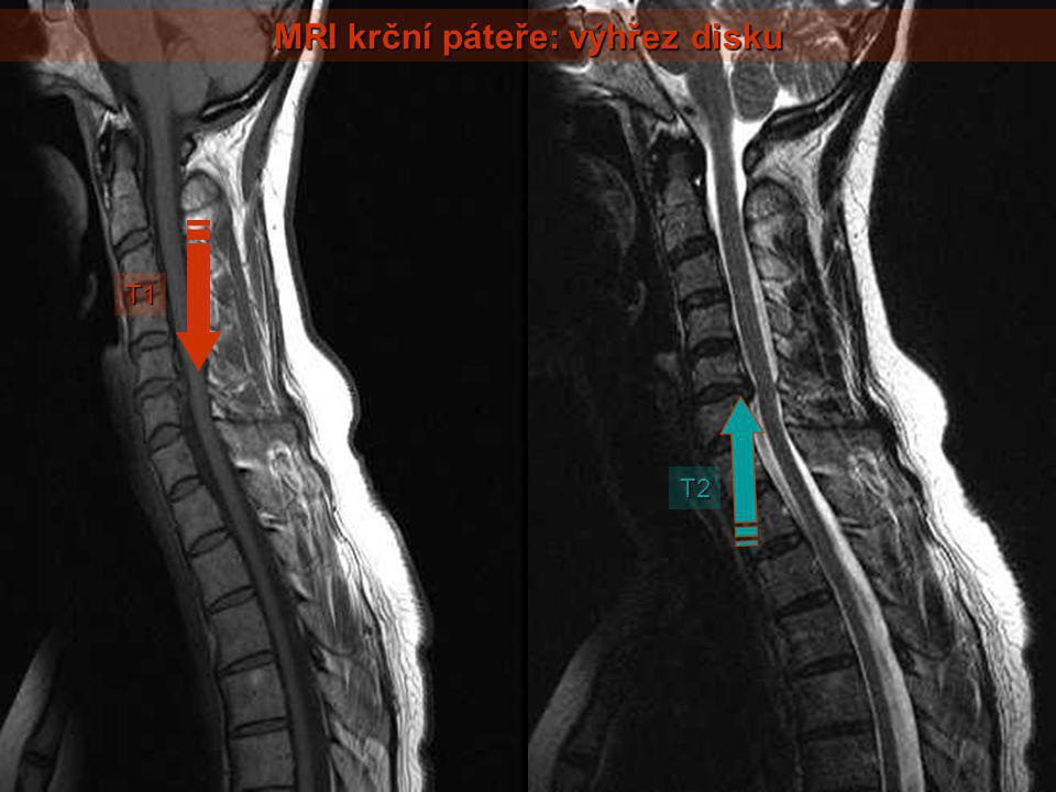 MRI krční páteře: výhřez disku