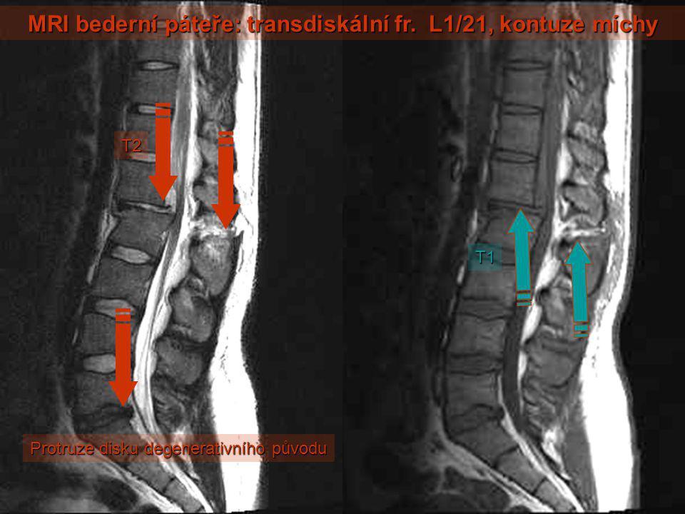 MRI bederní páteře: transdiskální fr. L1/21, kontuze míchy