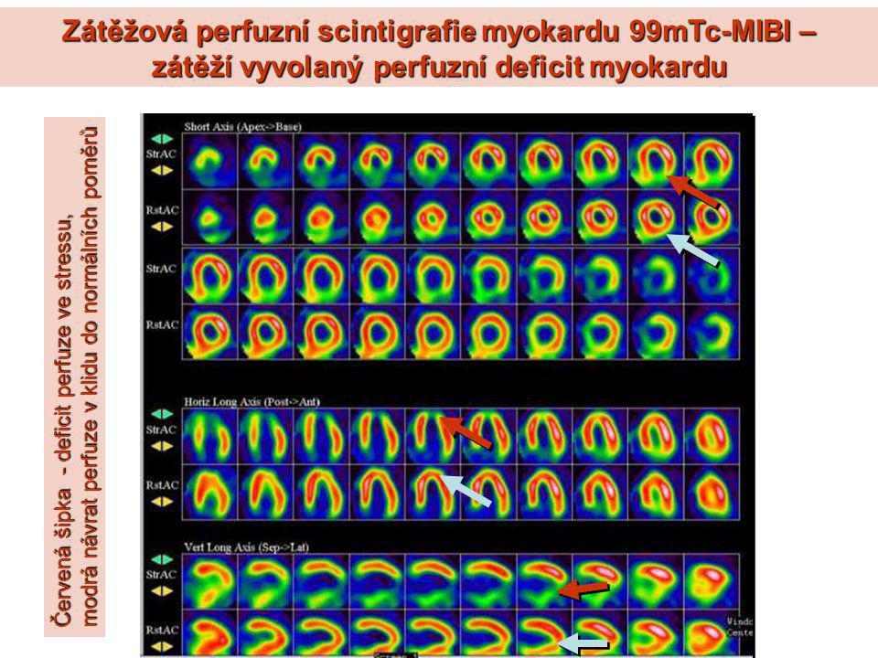 Zátěžová perfuzní scintigrafie myokardu 99mTc-MIBI – zátěží vyvolaný perfuzní deficit myokardu