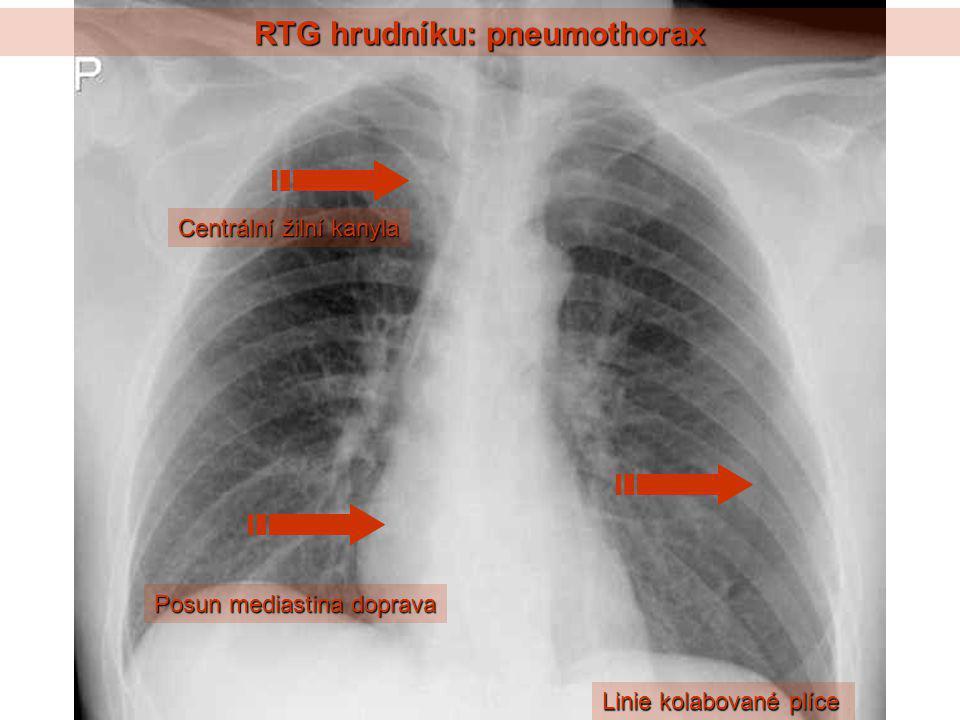 RTG hrudníku: pneumothorax