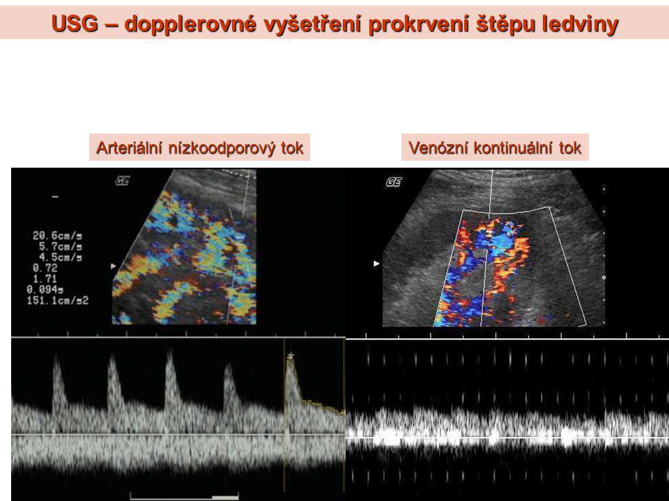 USG – dopplerovné vyšetření prokrvení štěpu ledviny