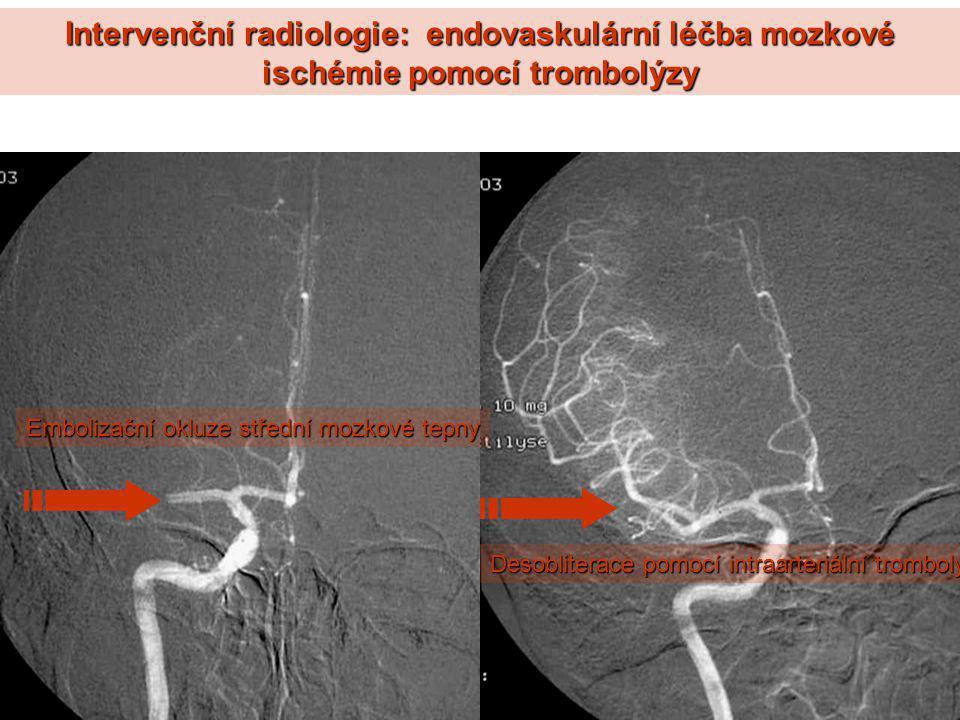 Intervenční radiologie: endovaskulární léčba mozkové ischémie pomocí trombolýzy