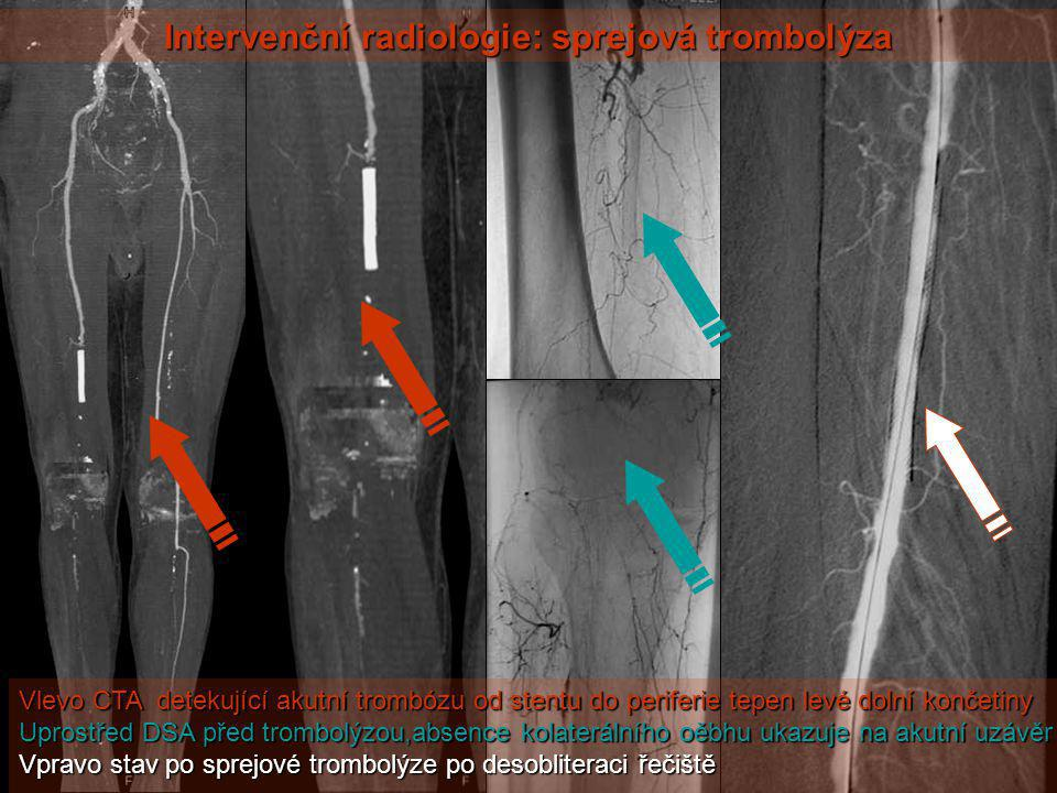 Intervenční radiologie: sprejová trombolýza