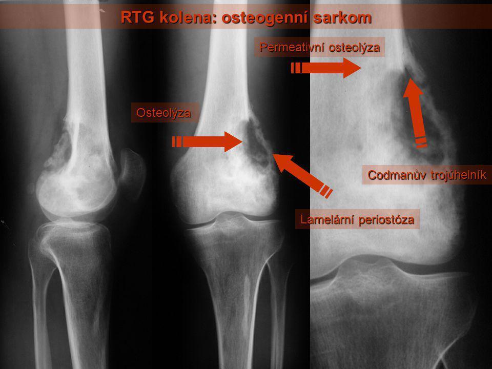 RTG kolena: osteogenní sarkom