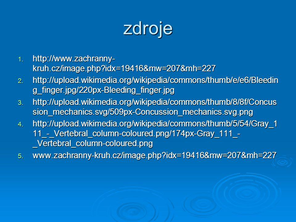 zdroje http://www.zachranny-kruh.cz/image.php idx=19416&mw=207&mh=227