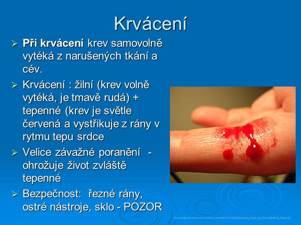Krvácení Při krvácení krev samovolně vytéká z narušených tkání a cév.