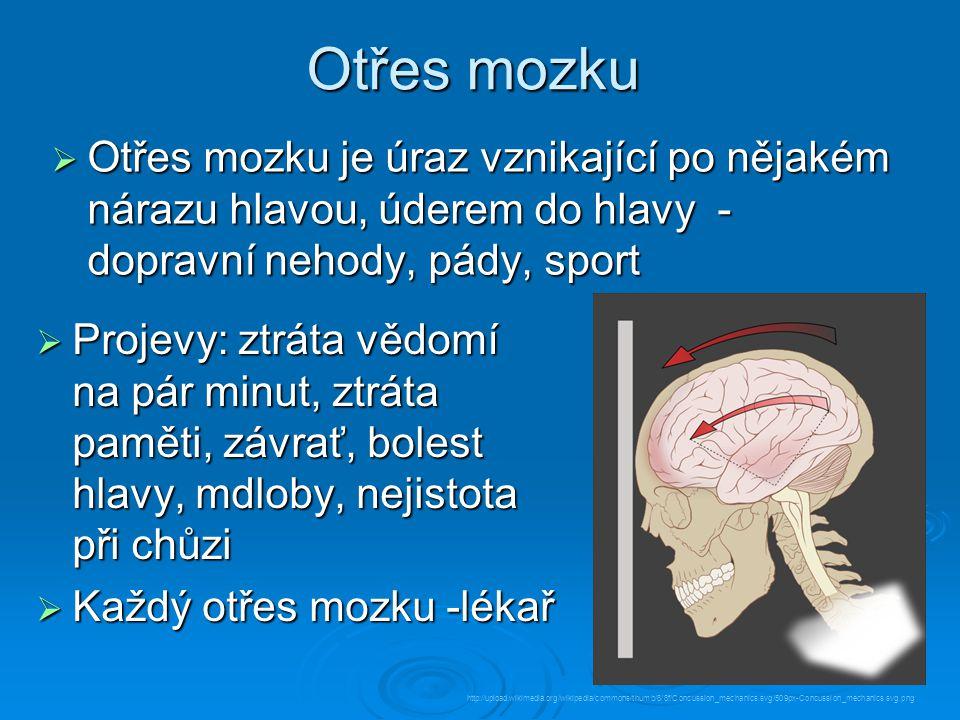 Otřes mozku Otřes mozku je úraz vznikající po nějakém nárazu hlavou, úderem do hlavy - dopravní nehody, pády, sport.