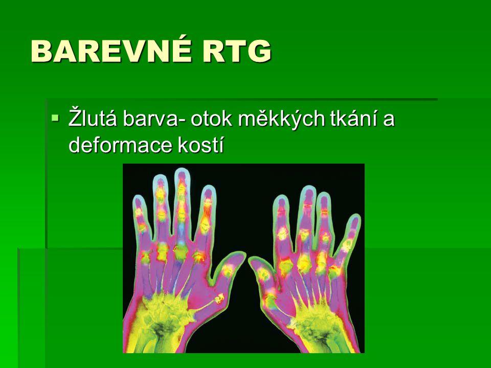 BAREVNÉ RTG Žlutá barva- otok měkkých tkání a deformace kostí
