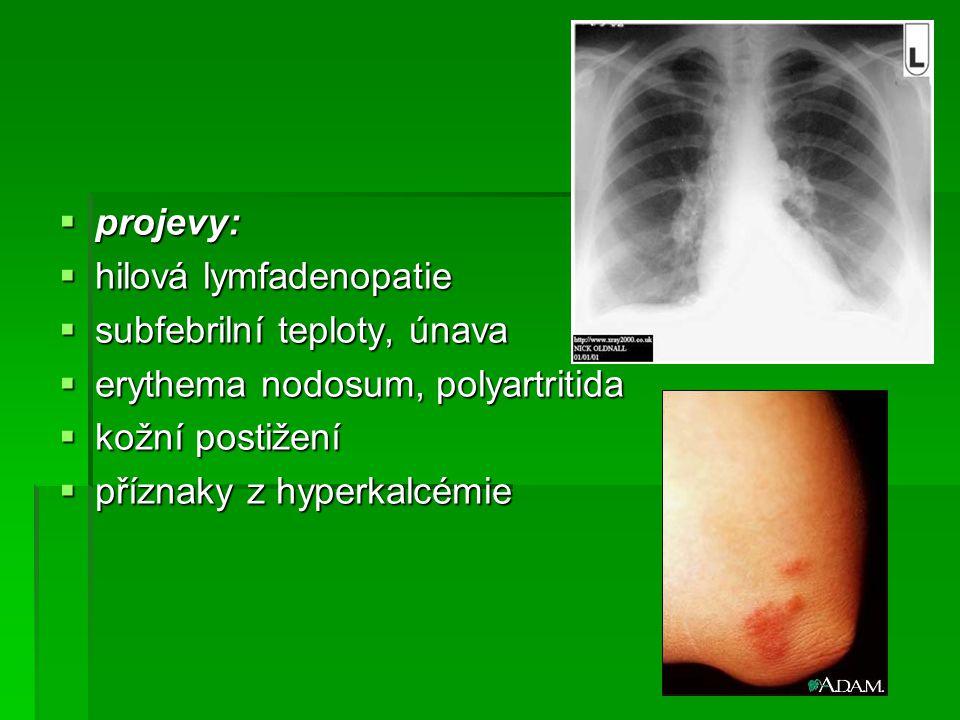 projevy: hilová lymfadenopatie. subfebrilní teploty, únava. erythema nodosum, polyartritida. kožní postižení.