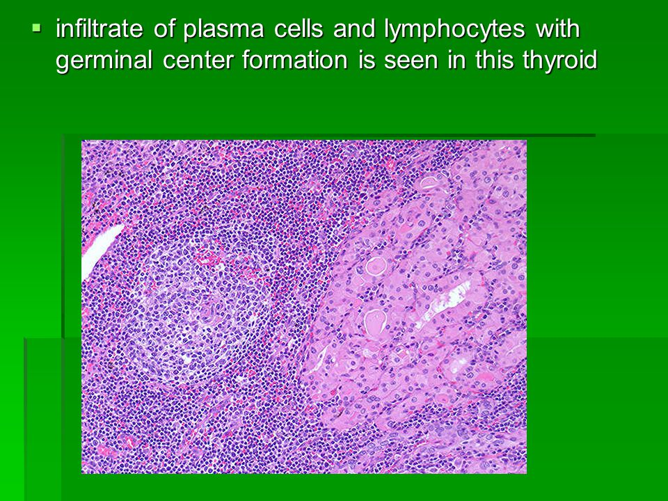 infiltrate of plasma cells and lymphocytes with germinal center formation is seen in this thyroid