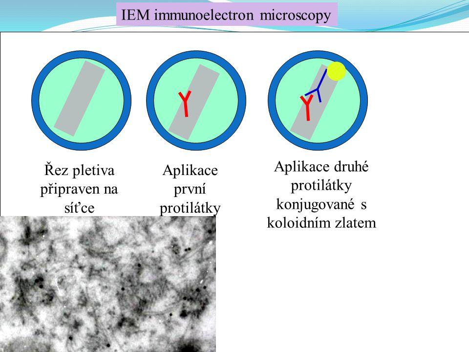 IEM immunoelectron microscopy
