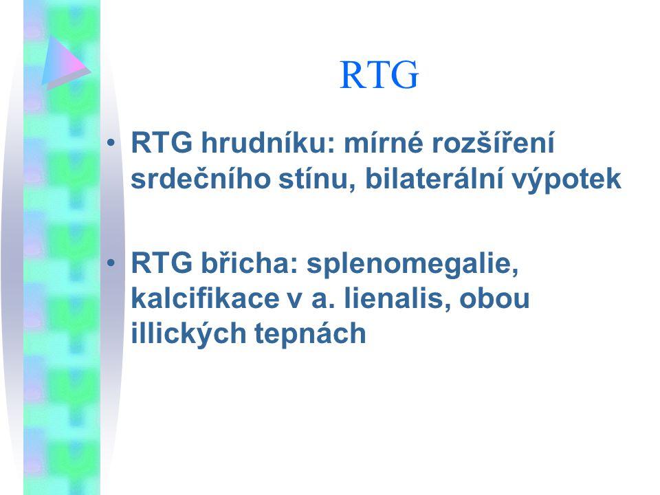 RTG RTG hrudníku: mírné rozšíření srdečního stínu, bilaterální výpotek