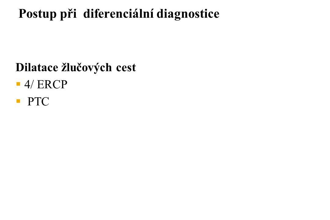 Postup při diferenciální diagnostice