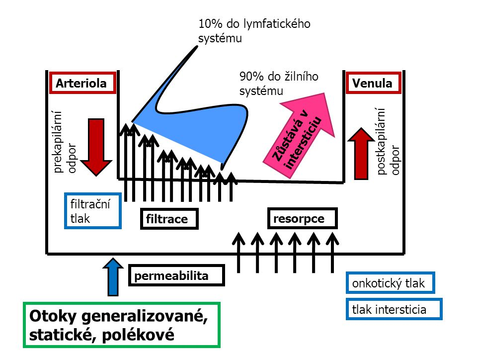 Otoky generalizované, statické, polékové 10% do lymfatického systému