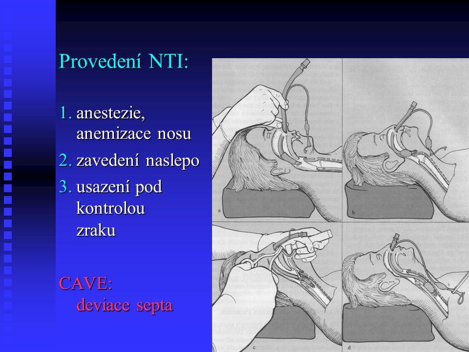Provedení NTI: anestezie, anemizace nosu zavedení naslepo
