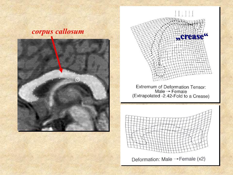 """corpus callosum """"crease splenium"""