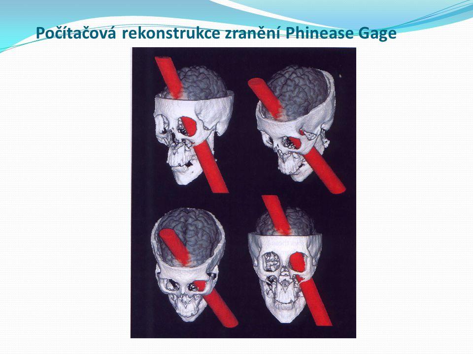 Počítačová rekonstrukce zranění Phinease Gage