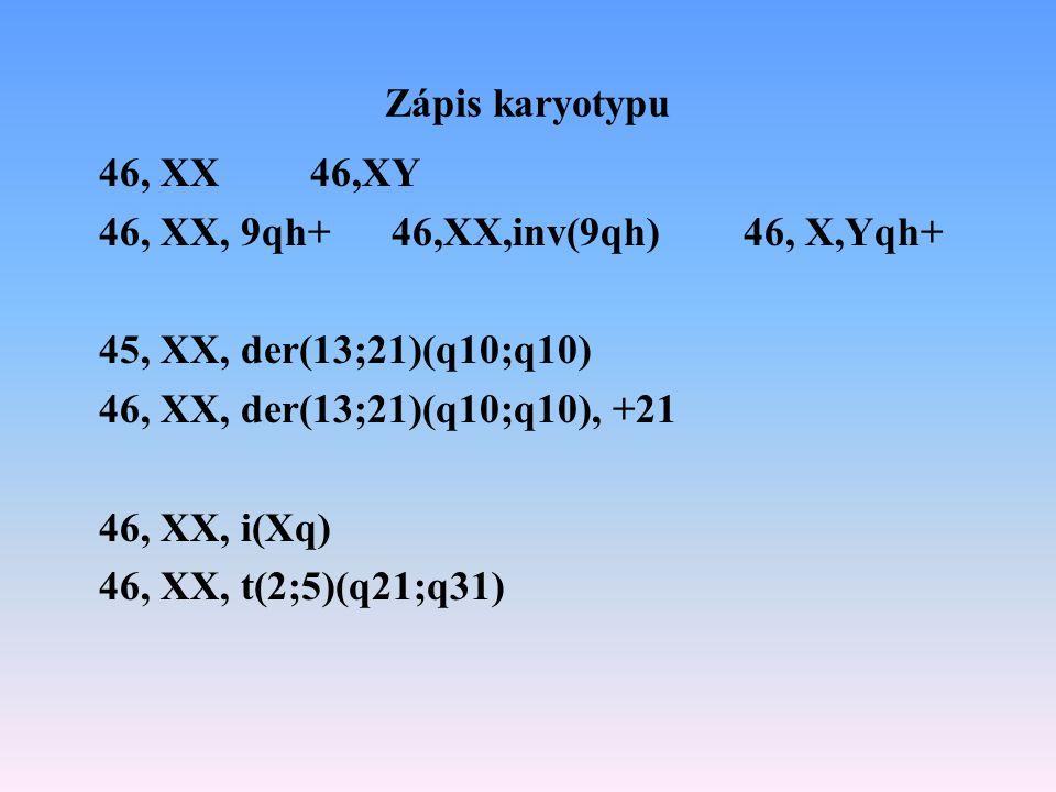 Zápis karyotypu 46, XX 46,XY. 46, XX, 9qh+ 46,XX,inv(9qh) 46, X,Yqh+ 45, XX, der(13;21)(q10;q10)
