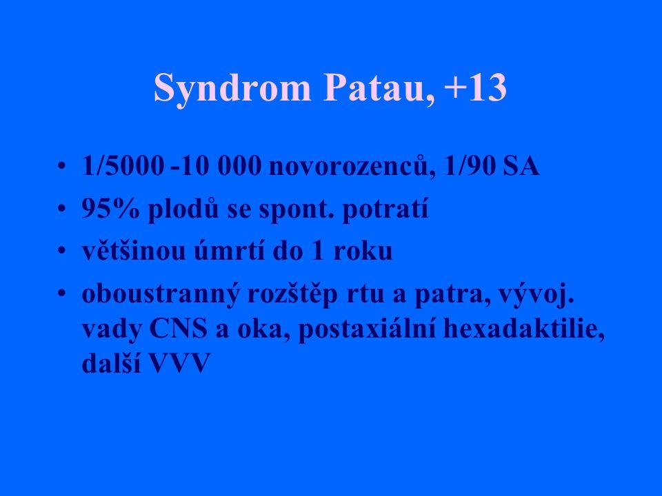 Syndrom Patau, +13 1/5000 -10 000 novorozenců, 1/90 SA