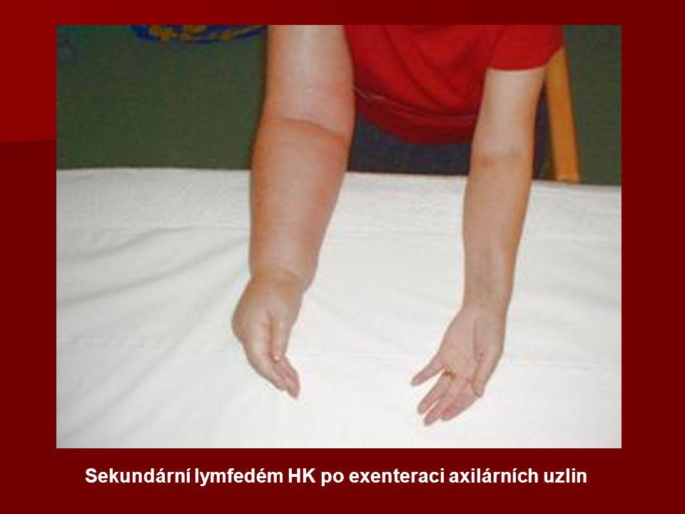 Sekundární lymfedém HK po exenteraci axilárních uzlin