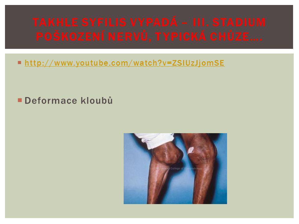 TAKHLE SYFILIS VYPADÁ – III. Stadium poškození nervů, typická chůze….