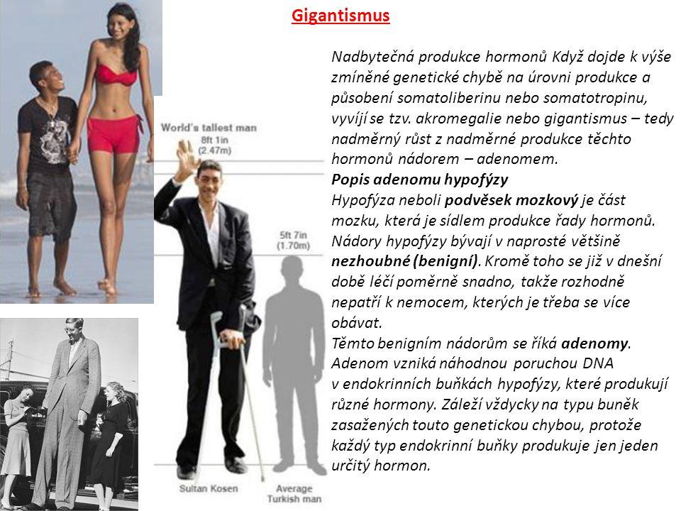 Gigantismus