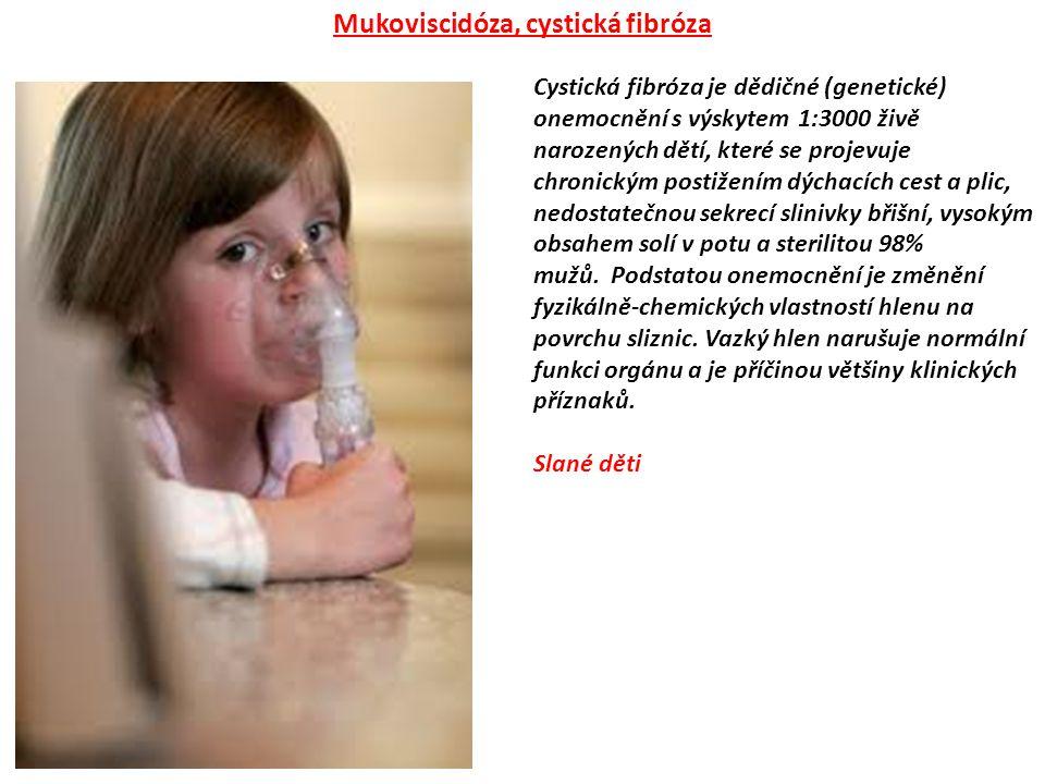 Mukoviscidóza, cystická fibróza