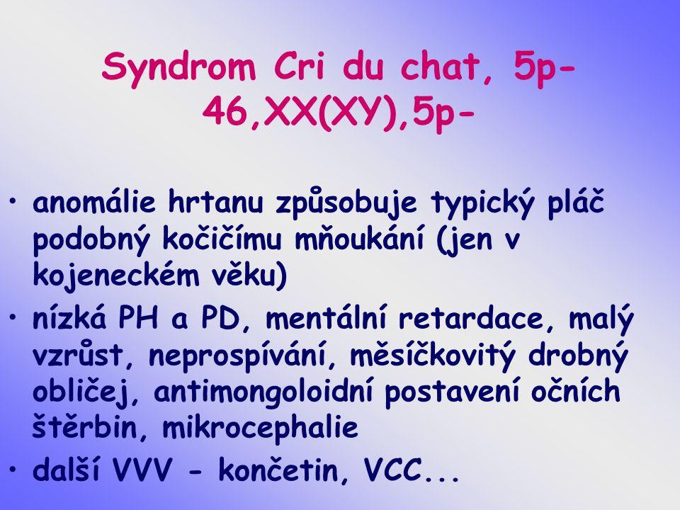 Syndrom Cri du chat, 5p- 46,XX(XY),5p-