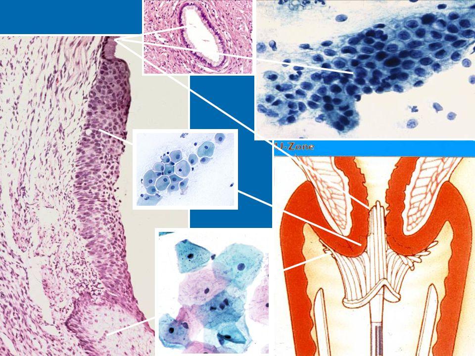 Reprezentativní odběr z transformační zóny cervixu je podmínkou včasného záchytu prekanceróz.