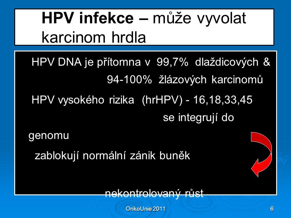 HPV infekce – může vyvolat karcinom hrdla