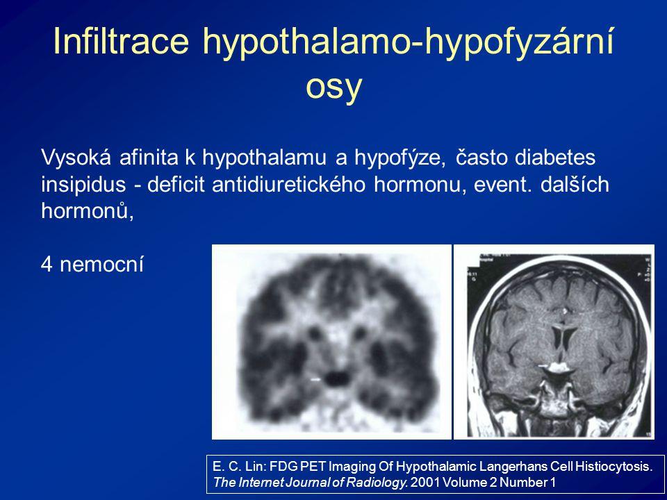 Infiltrace hypothalamo-hypofyzární osy