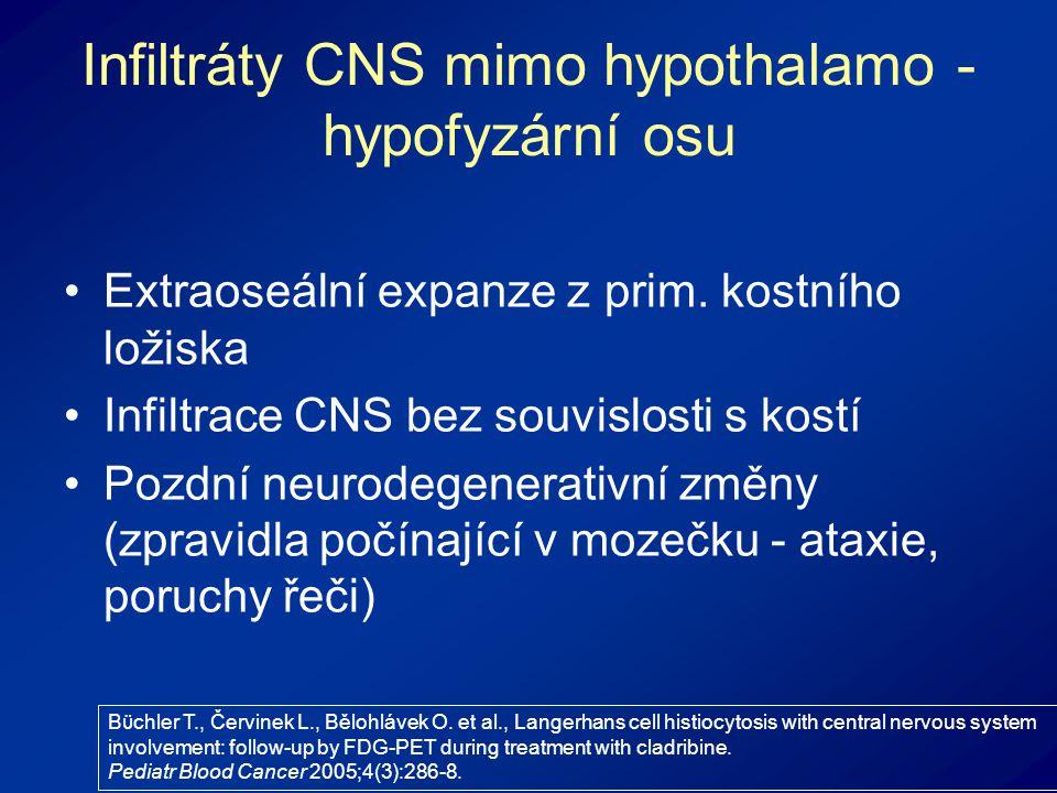 Infiltráty CNS mimo hypothalamo - hypofyzární osu