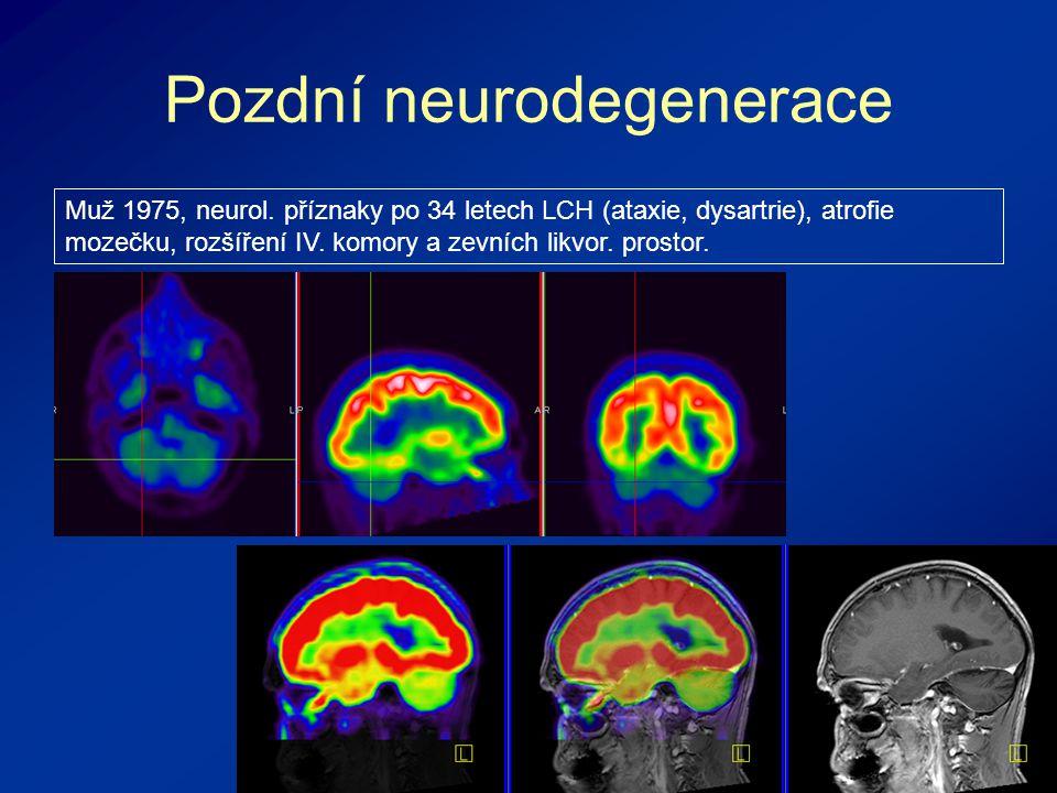 Pozdní neurodegenerace