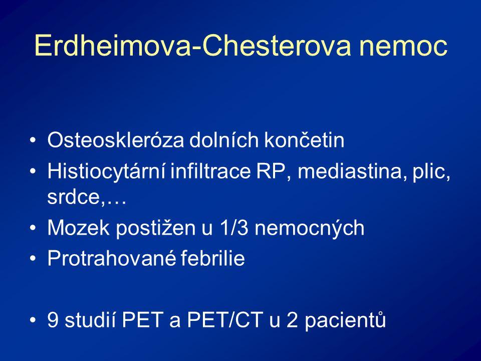 Erdheimova-Chesterova nemoc