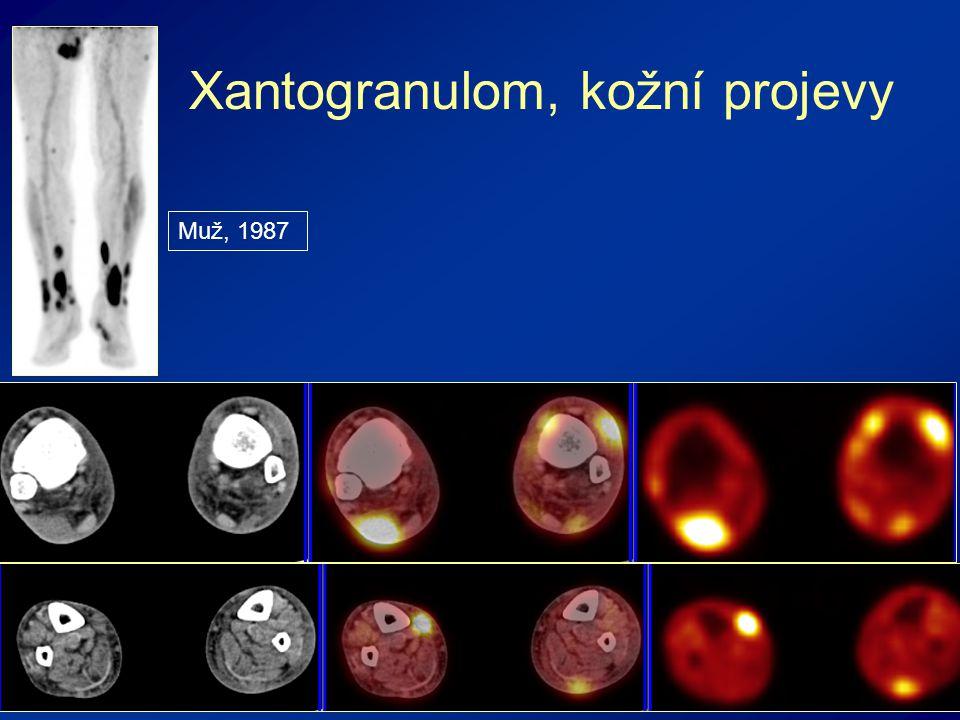 Xantogranulom, kožní projevy