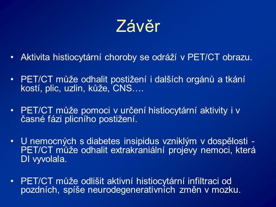 Závěr Aktivita histiocytární choroby se odráží v PET/CT obrazu.