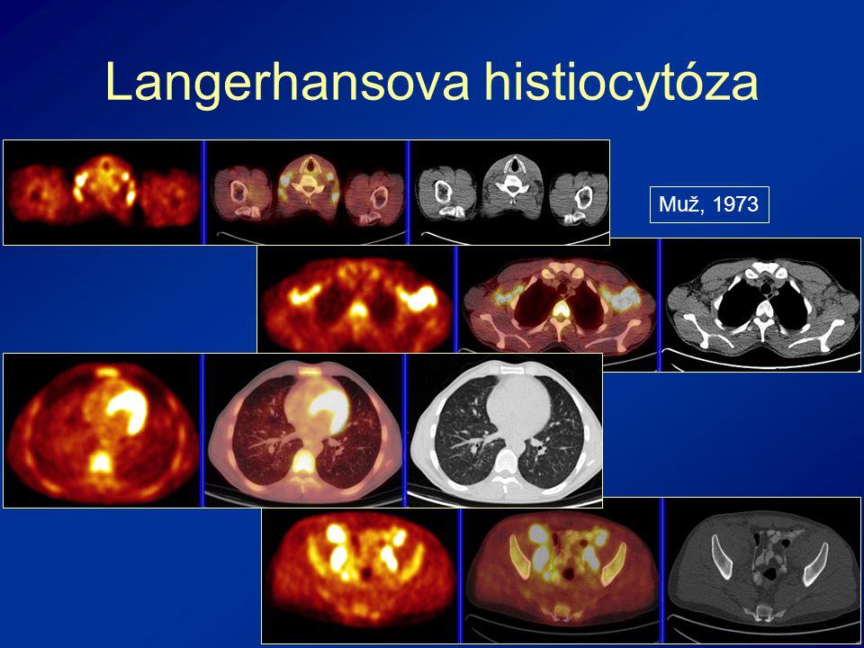 Langerhansova histiocytóza