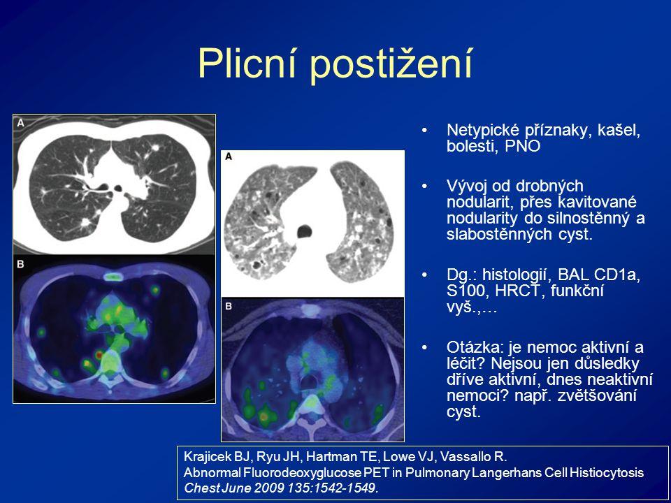Plicní postižení Netypické příznaky, kašel, bolesti, PNO