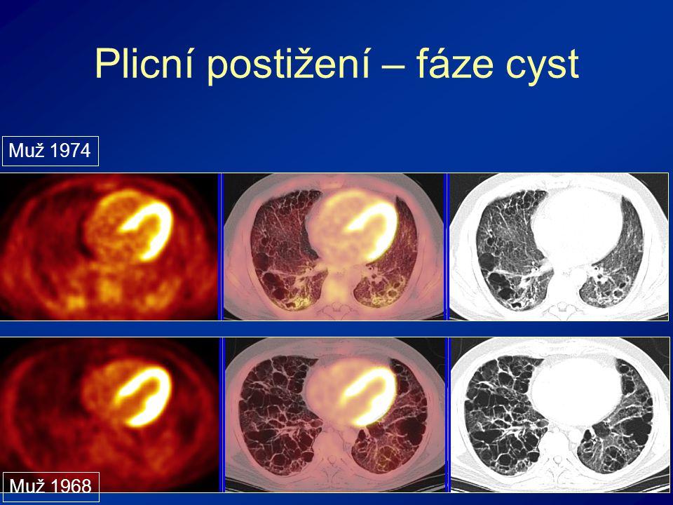 Plicní postižení – fáze cyst