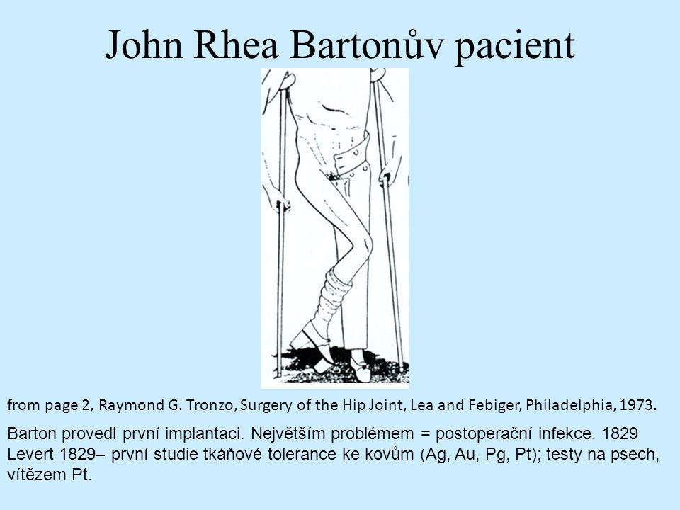 John Rhea Bartonův pacient