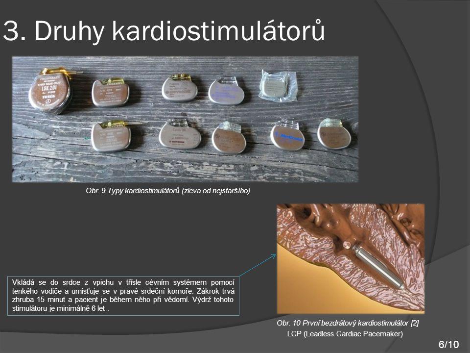 3. Druhy kardiostimulátorů