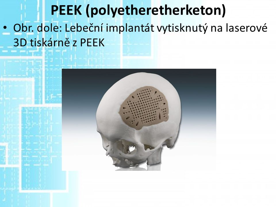 PEEK (polyetheretherketon)