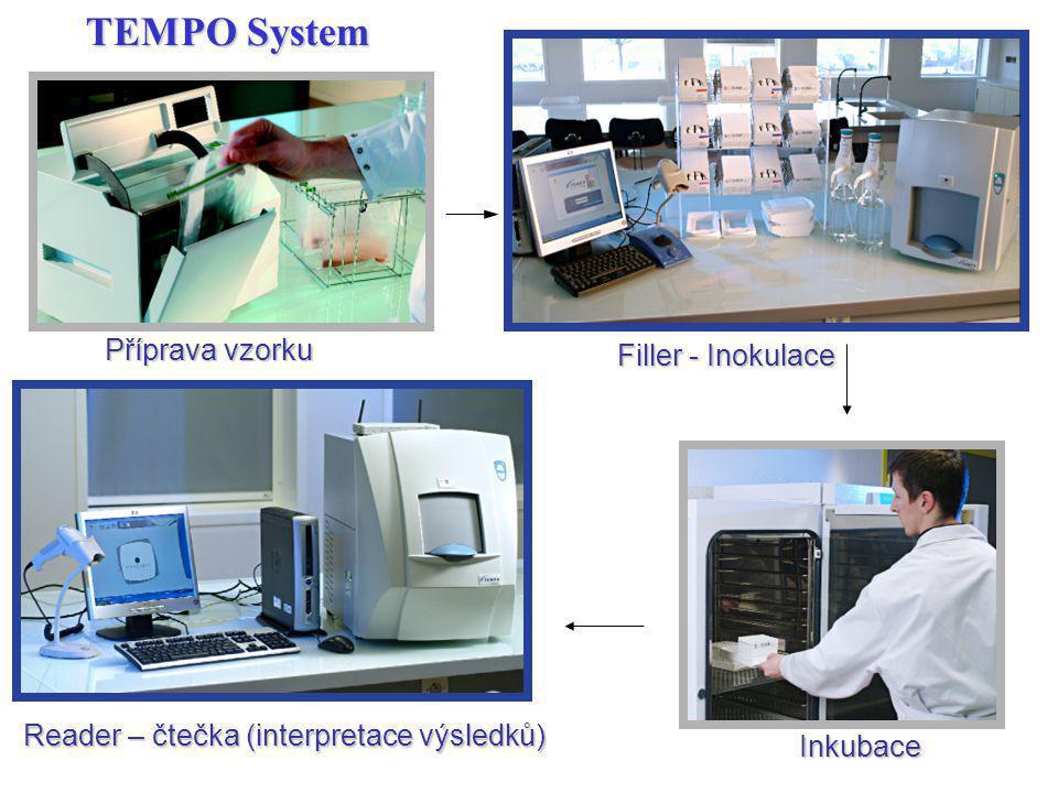 TEMPO System Příprava vzorku Filler - Inokulace