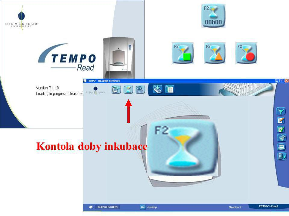 Kontola doby inkubace TEMPO_Read software is dedicated to the reading station.